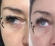 Услуги косметолога: чистка лица,  пилинги